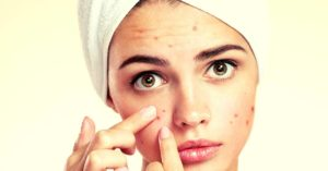 Essential Oils for Acne – Treat, Heal And Prevent Breakouts