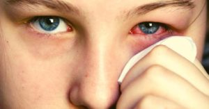 8 Best Essential Oils To Get Rid Of Pink Eye (+3 Recipes & How To Use)