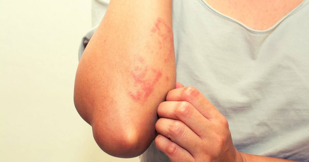 essential oils for rashes