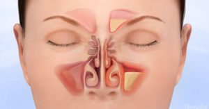 How To Use Essential Oils For Sinus Infection For Amazing Relief!