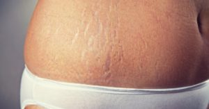 Best Essential Oils For Stretch Marks (+Recipes) To Make 'Em Go Away!