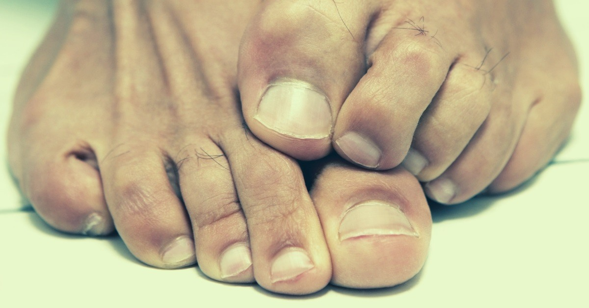 Essential Oils for Toenail Fungus - Top 8 + 3 Poweful Recipes To Try!